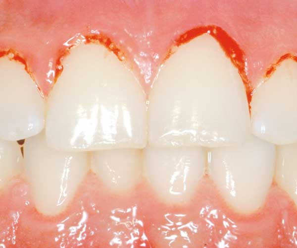 Tandköttsinflammation - paradontit, granatäpple har antiinflammatoriska och antibakteriella egenskaper och kan skydda.